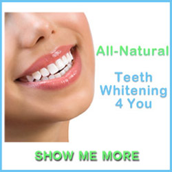 Teeth Whitening 4 Yoy