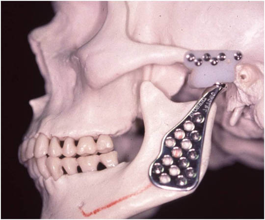 Common joint space in facial surgery doesn't